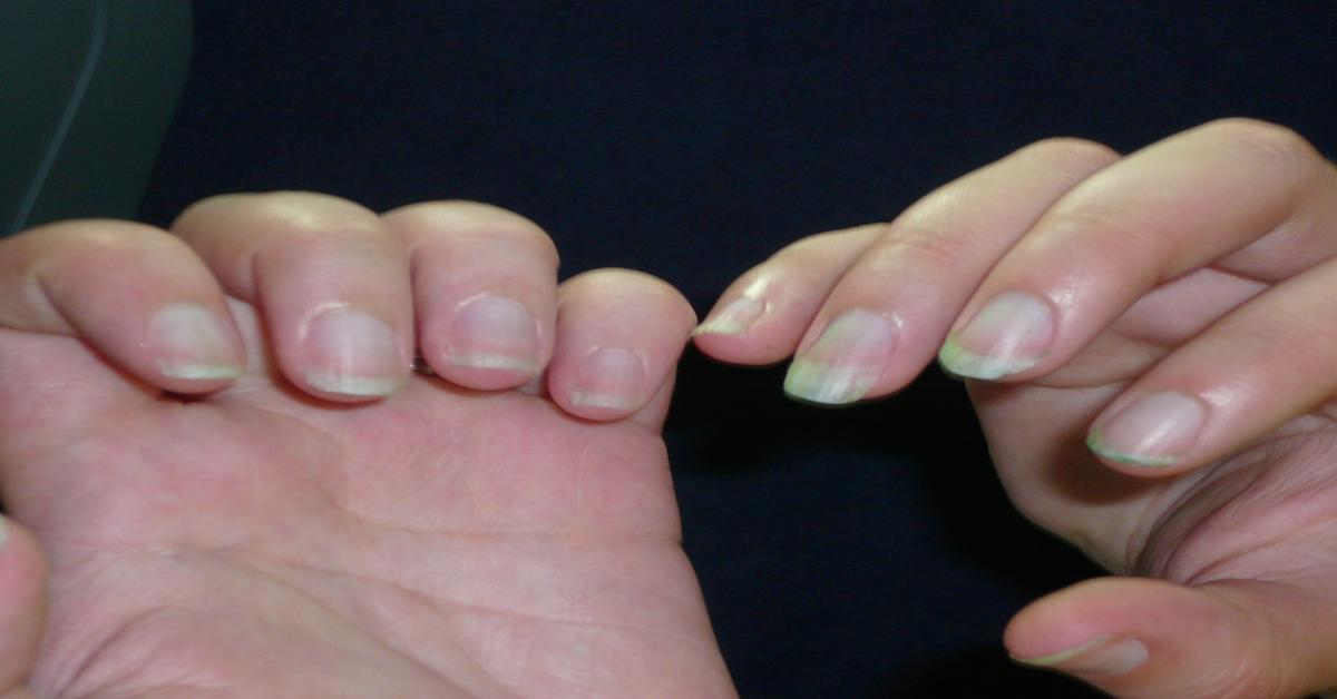 12 changes in your fingernails that could signal other problems