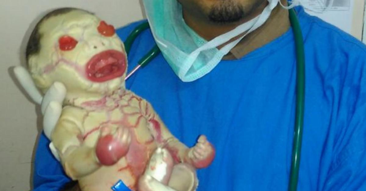 Warning, dramatic pictures: Indian baby with terrible skin ...