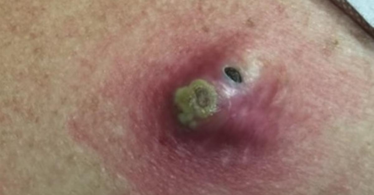 Disgusting Video Doctor Removes Infected Blackhead