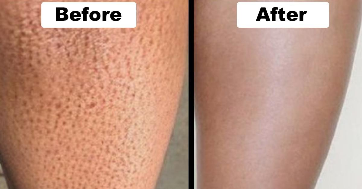 5 Easy Steps For Getting Rid Of Strawberry Legs