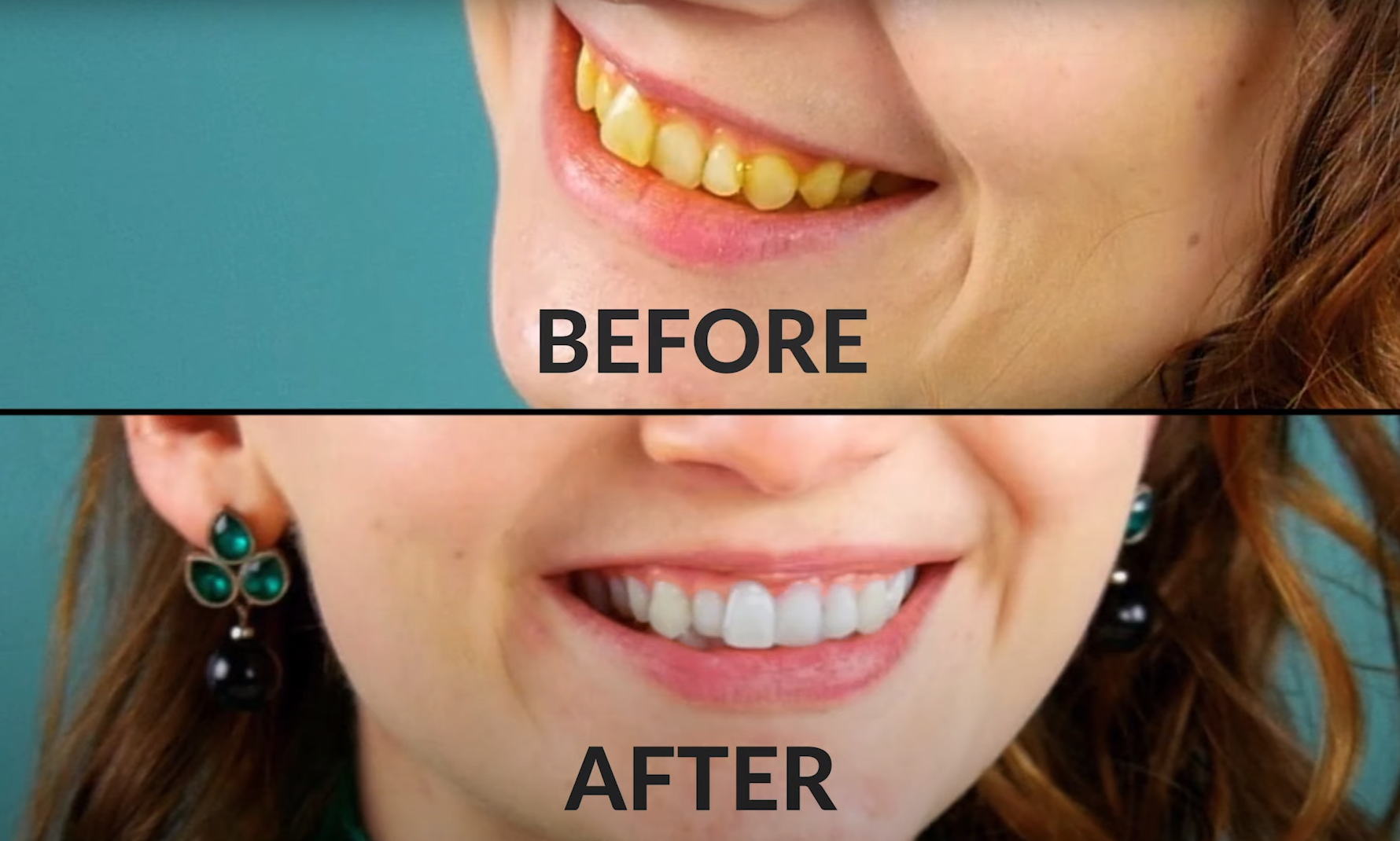 9 Food Beauty Hacks   How To Whiten Your Teeth